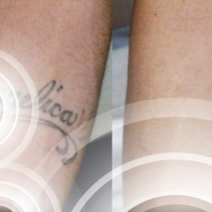 Effacement tatouage